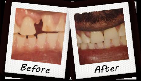 Cooper City FL Dentist